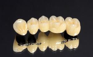 Протезирование зубов металлокерамикой в Калининграде